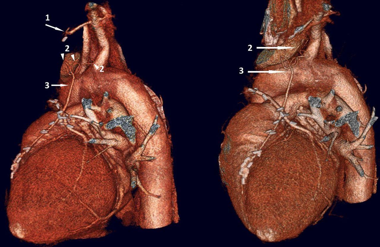 Anatomical anomalies following coronary artery bypass surgery ...