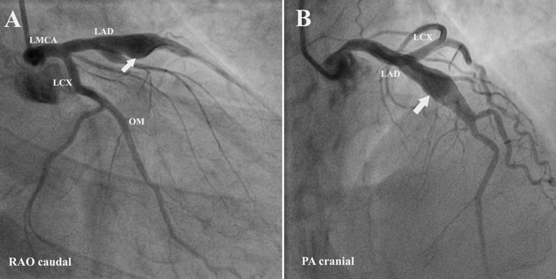 Fusiform aneurysm of left coronary artery presenting as ...