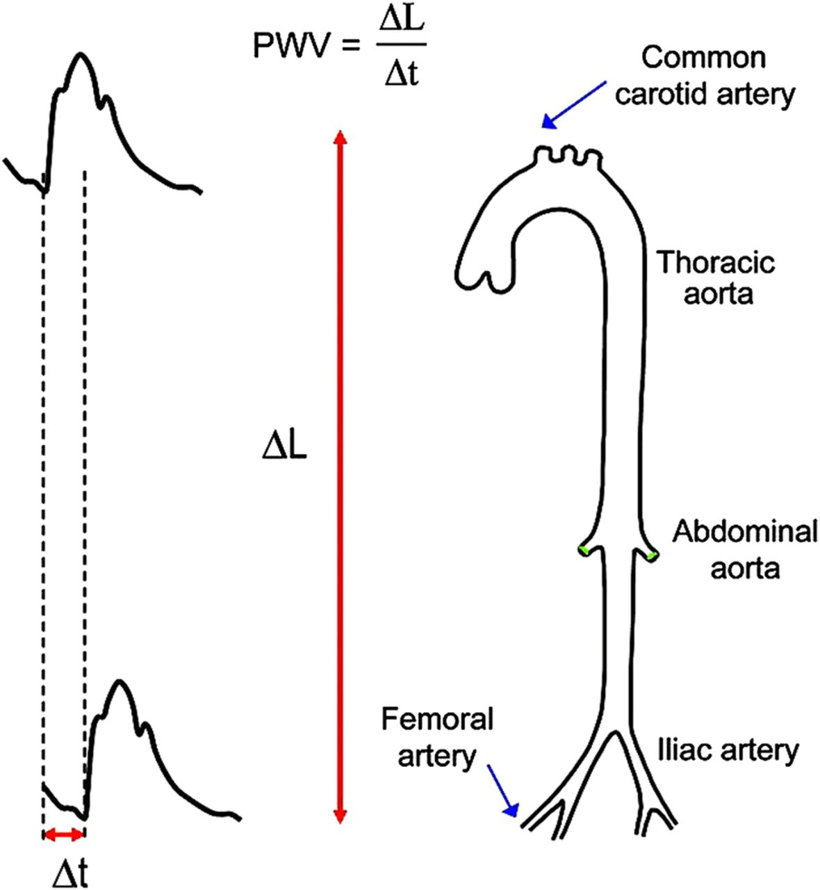 Aortic Pulse Wave Velocity And Its Relationship With